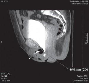 Многосрезовая спиральная компьютерная томограмма таза на высоте пробы Вальсальвы. Опущение передней стенки влагалища III ст. с формированием цистоцеле. (Мочевой пузырь опустился ниже лонно-копчиковой линии.)
